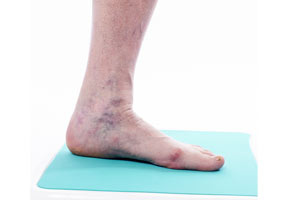 be2407eb57e4ef Varicose veins are enlarged, visible veins that protrude just beneath the  skin. They're often blue but can be red or flesh-tones as well. Varicose  veins are ...